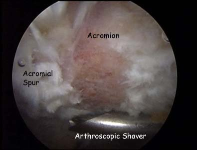 Under-surface of the acromion pre-op
